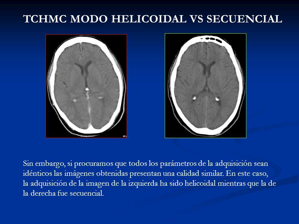 TCHMC MODO HELICOIDAL VS SECUENCIAL Sin embargo, si procuramos que todos los parámetros de la adquisición sean idénticos las imágenes obtenidas presen