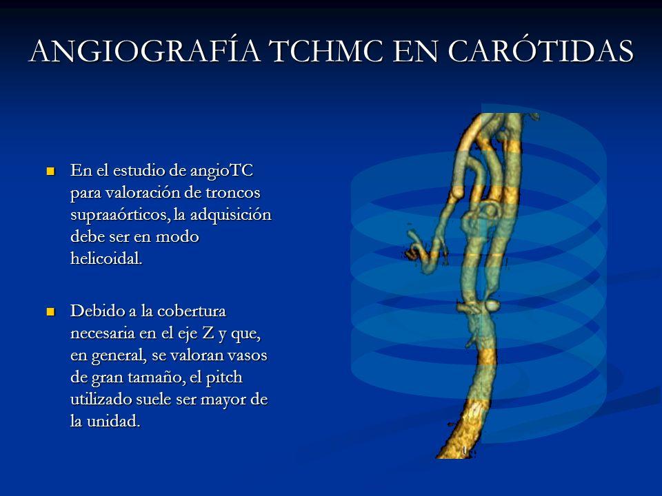 ANGIOGRAFÍA TCHMC EN CARÓTIDAS En el estudio de angioTC para valoración de troncos supraaórticos, la adquisición debe ser en modo helicoidal. En el es