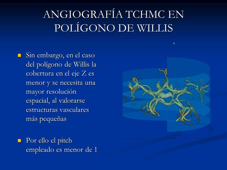 ANGIOGRAFÍA TCHMC EN POLÍGONO DE WILLIS Sin embargo, en el caso del polígono de Willis la cobertura en el eje Z es menor y se necesita una mayor resol