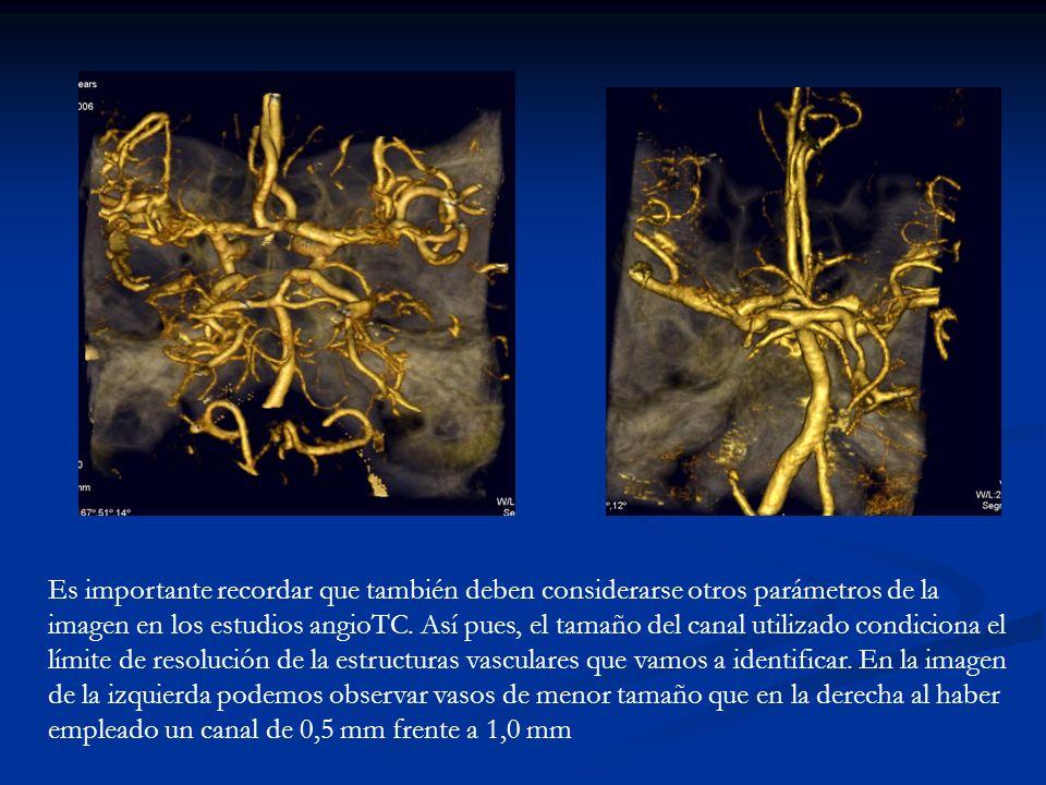 Es importante recordar que también deben considerarse otros parámetros de la imagen en los estudios angioTC. Así pues, el tamaño del canal utilizado c