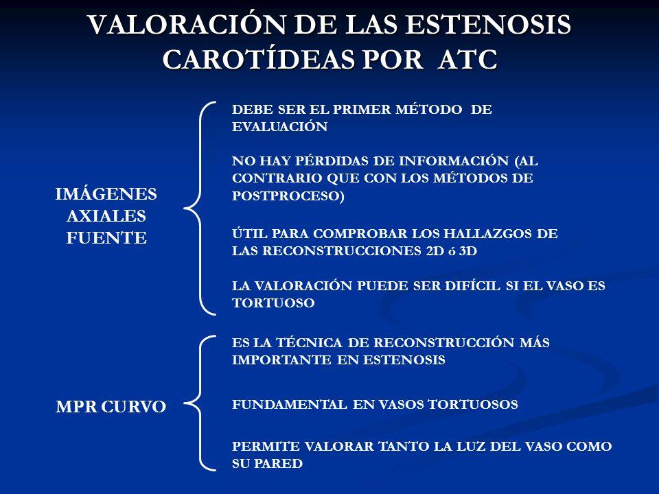 VALORACIÓN DE LAS ESTENOSIS CAROTÍDEAS POR ATC IMÁGENES AXIALES FUENTE DEBE SER EL PRIMER MÉTODO DE EVALUACIÓN NO HAY PÉRDIDAS DE INFORMACIÓN (AL CONT