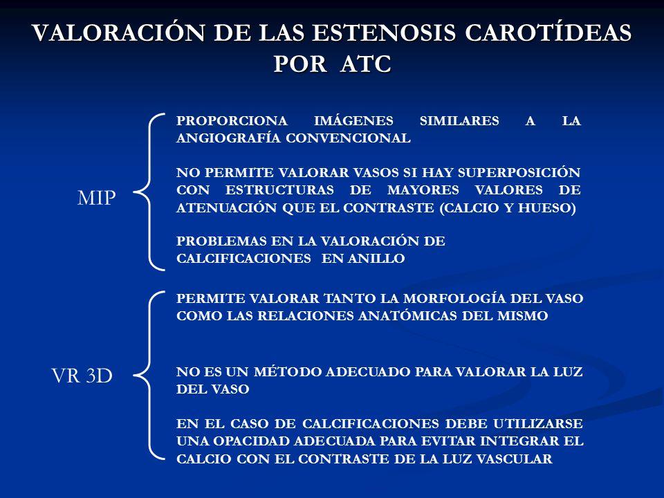 VALORACIÓN DE LAS ESTENOSIS CAROTÍDEAS POR ATC MIP PROPORCIONA IMÁGENES SIMILARES A LA ANGIOGRAFÍA CONVENCIONAL NO PERMITE VALORAR VASOS SI HAY SUPERP