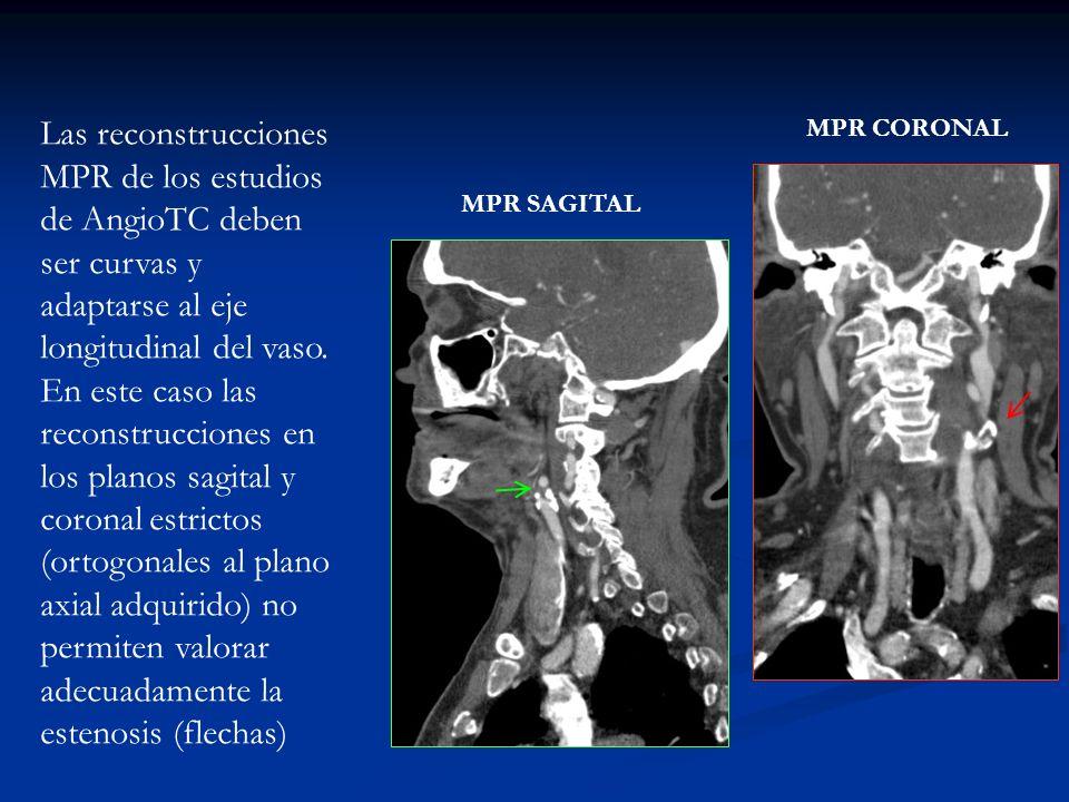 MPR SAGITAL MPR CORONAL Las reconstrucciones MPR de los estudios de AngioTC deben ser curvas y adaptarse al eje longitudinal del vaso. En este caso la