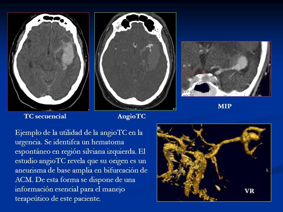 TC secuencialAngioTC MIP VR Ejemplo de la utilidad de la angioTC en la urgencia. Se identifca un hematoma espontáneo en región silviana izquierda. El