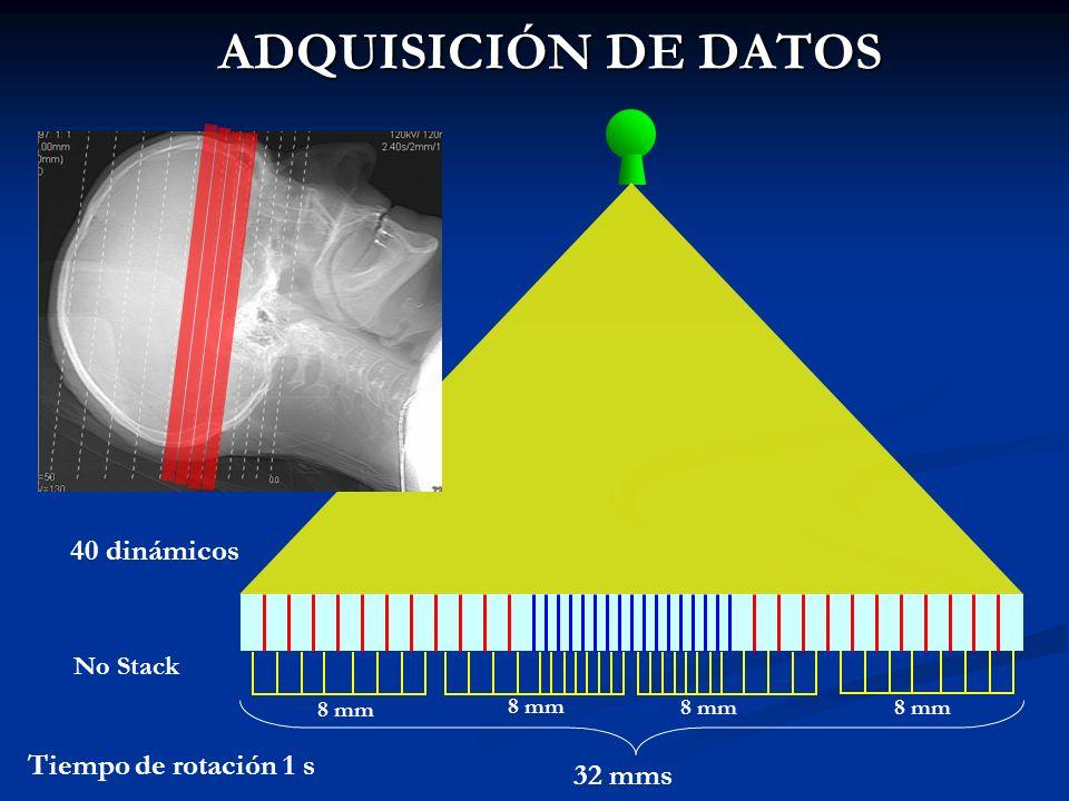 ADQUISICIÓN DE DATOS 32 mms 8 mm Tiempo de rotación 1 s No Stack 40 dinámicos