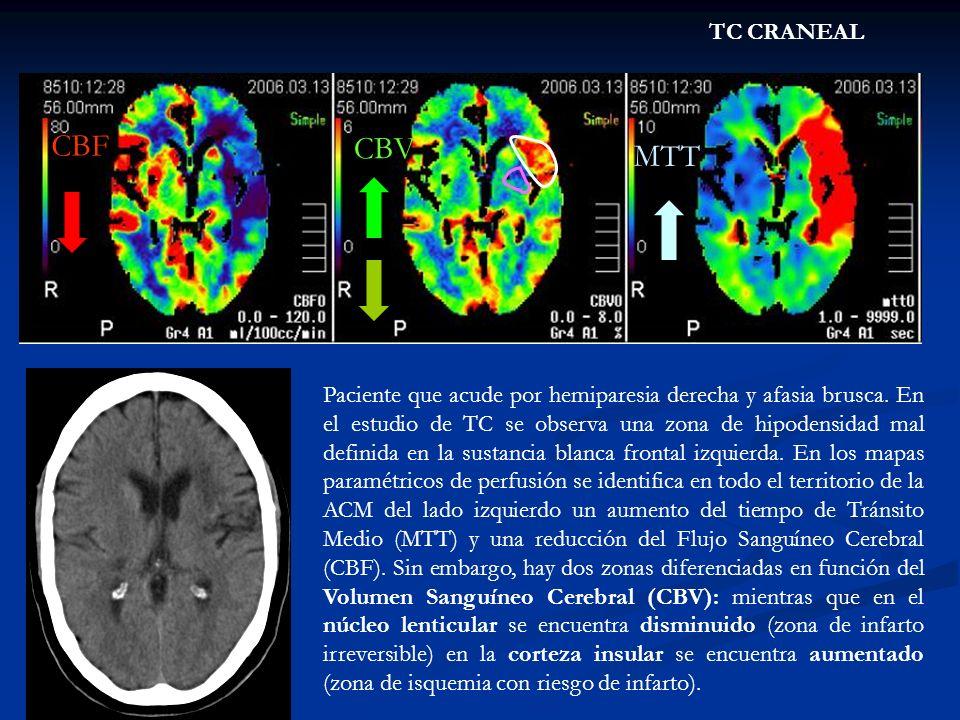 TC CRANEAL CBF CBV MTT Paciente que acude por hemiparesia derecha y afasia brusca. En el estudio de TC se observa una zona de hipodensidad mal definid