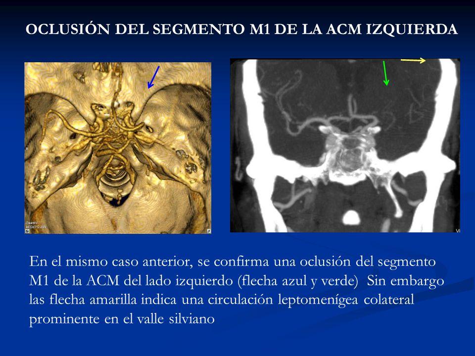 OCLUSIÓN DEL SEGMENTO M1 DE LA ACM IZQUIERDA En el mismo caso anterior, se confirma una oclusión del segmento M1 de la ACM del lado izquierdo (flecha