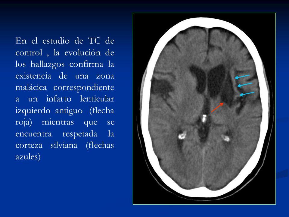 En el estudio de TC de control, la evolución de los hallazgos confirma la existencia de una zona malácica correspondiente a un infarto lenticular izqu