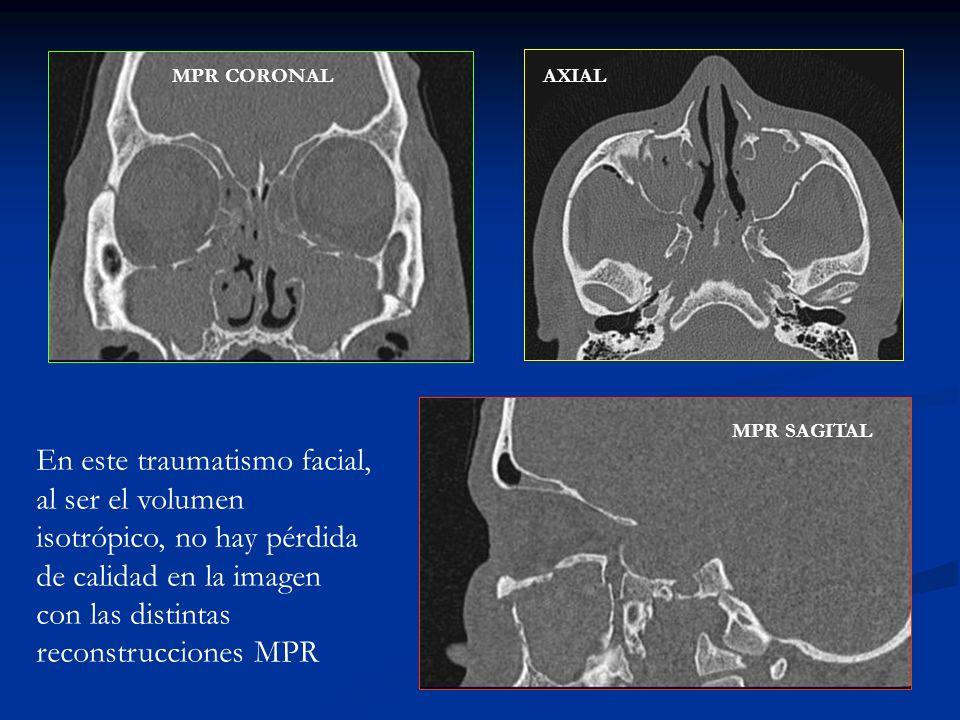 MPR CORONALAXIAL MPR SAGITAL En este traumatismo facial, al ser el volumen isotrópico, no hay pérdida de calidad en la imagen con las distintas recons