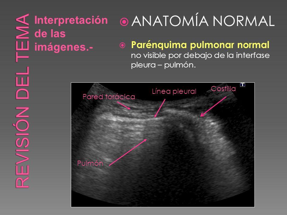 Interpretación de las imágenes.- ANATOMÍA NORMAL Parénquima pulmonar normal no visible por debajo de la interfase pleura – pulmón. Línea pleural Costi
