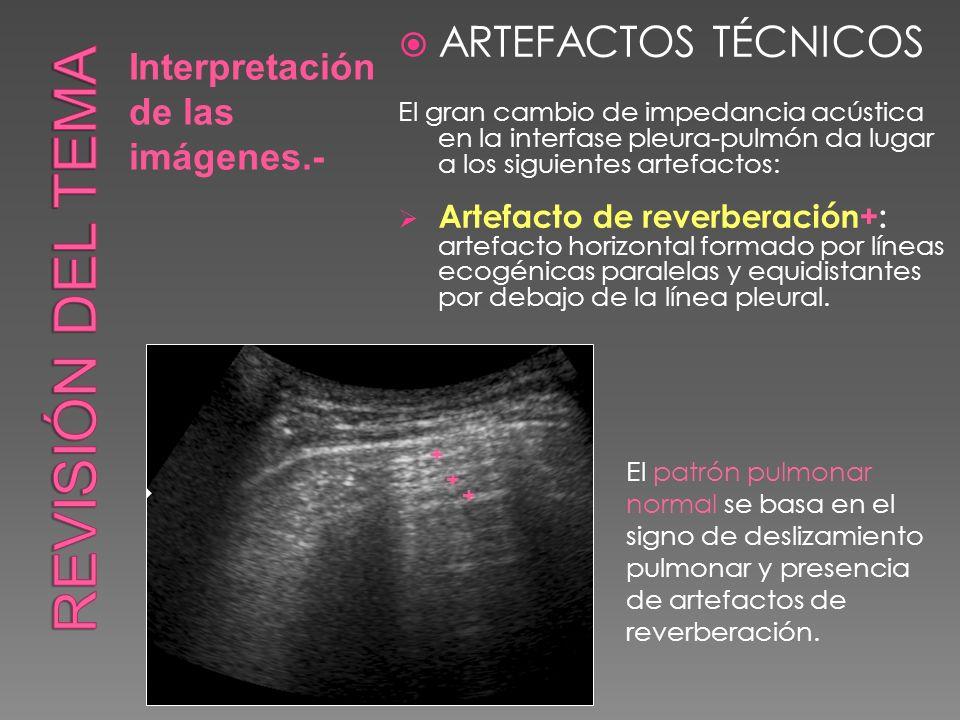 Interpretación de las imágenes.- ARTEFACTOS TÉCNICOS El gran cambio de impedancia acústica en la interfase pleura-pulmón da lugar a los siguientes art