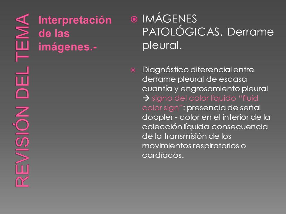 Interpretación de las imágenes.- IMÁGENES PATOLÓGICAS. Derrame pleural. Diagnóstico diferencial entre derrame pleural de escasa cuantía y engrosamient
