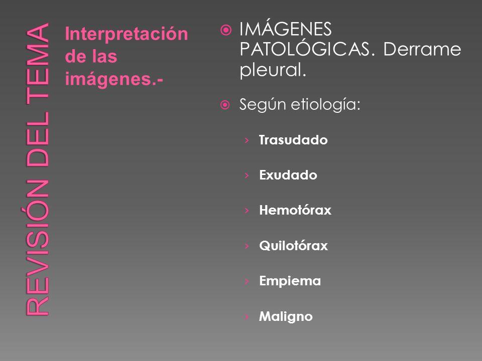 Interpretación de las imágenes.- IMÁGENES PATOLÓGICAS. Derrame pleural. Según etiología: Trasudado Exudado Hemotórax Quilotórax Empiema Maligno