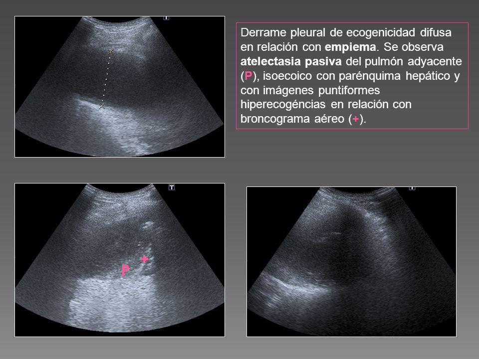 Derrame pleural de ecogenicidad difusa en relación con empiema. Se observa atelectasia pasiva del pulmón adyacente (P), isoecoico con parénquima hepát