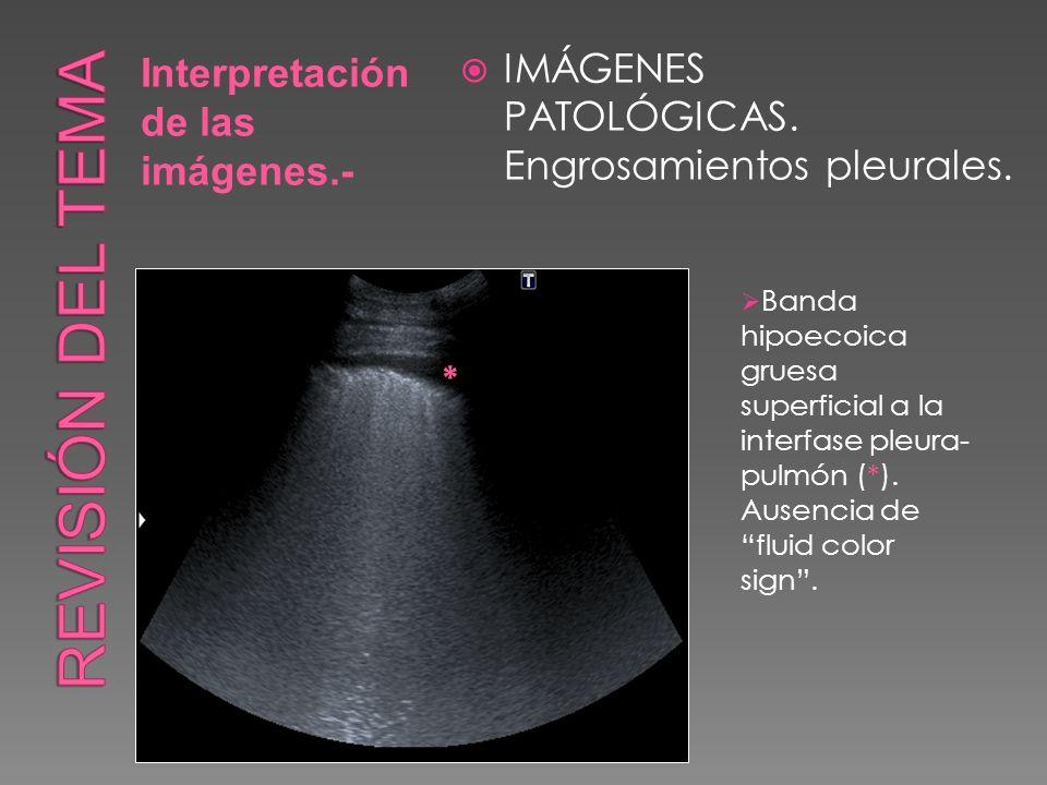 Interpretación de las imágenes.- IMÁGENES PATOLÓGICAS. Engrosamientos pleurales. * Banda hipoecoica gruesa superficial a la interfase pleura- pulmón (