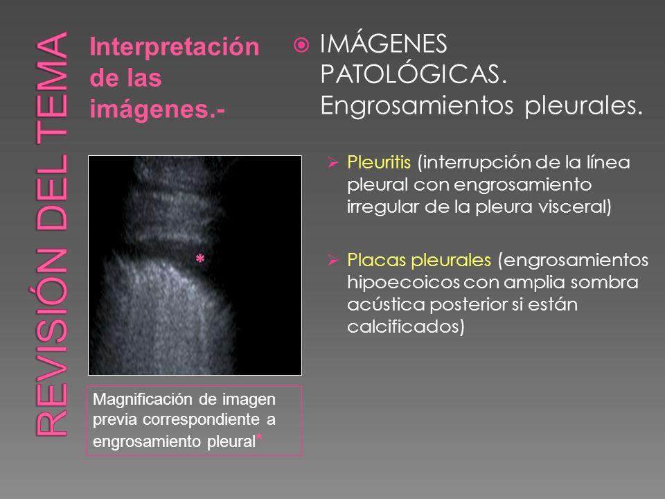 Interpretación de las imágenes.- IMÁGENES PATOLÓGICAS. Engrosamientos pleurales. Pleuritis (interrupción de la línea pleural con engrosamiento irregul