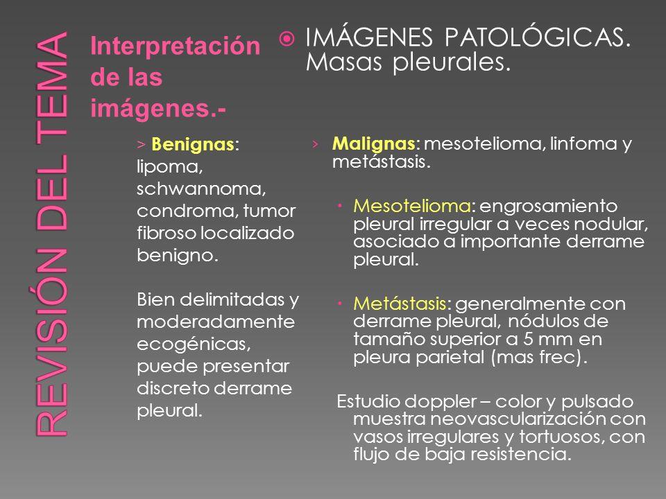 Interpretación de las imágenes.- IMÁGENES PATOLÓGICAS. Masas pleurales. Malignas : mesotelioma, linfoma y metástasis. Mesotelioma: engrosamiento pleur