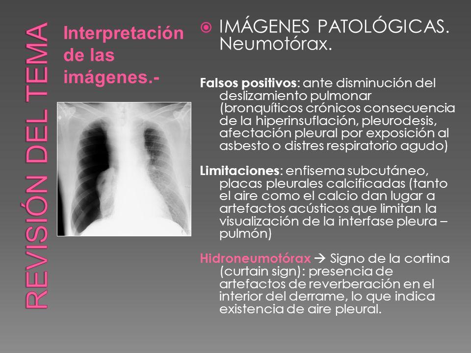 Interpretación de las imágenes.- IMÁGENES PATOLÓGICAS. Neumotórax. Falsos positivos : ante disminución del deslizamiento pulmonar (bronquíticos crónic