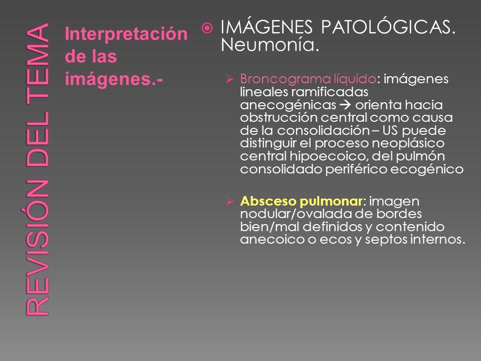 Interpretación de las imágenes.- IMÁGENES PATOLÓGICAS. Neumonía. Broncograma líquido: imágenes lineales ramificadas anecogénicas orienta hacia obstruc