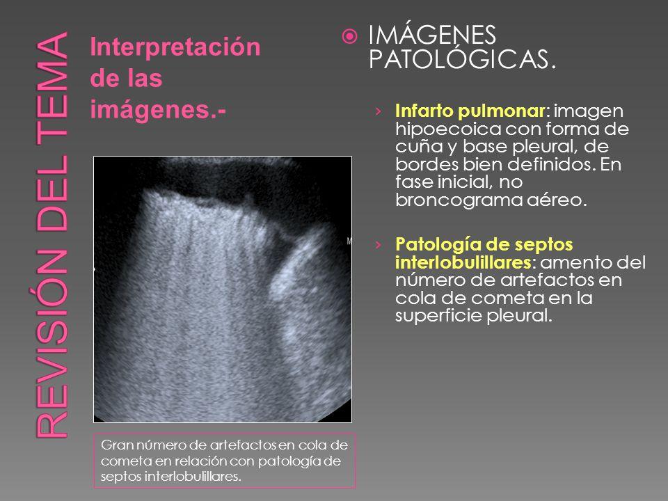 Interpretación de las imágenes.- IMÁGENES PATOLÓGICAS. Infarto pulmonar : imagen hipoecoica con forma de cuña y base pleural, de bordes bien definidos