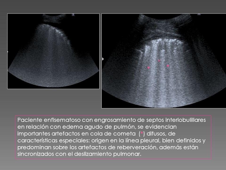 Paciente enfisematoso con engrosamiento de septos interlobulillares en relación con edema agudo de pulmón, se evidencian importantes artefactos en col
