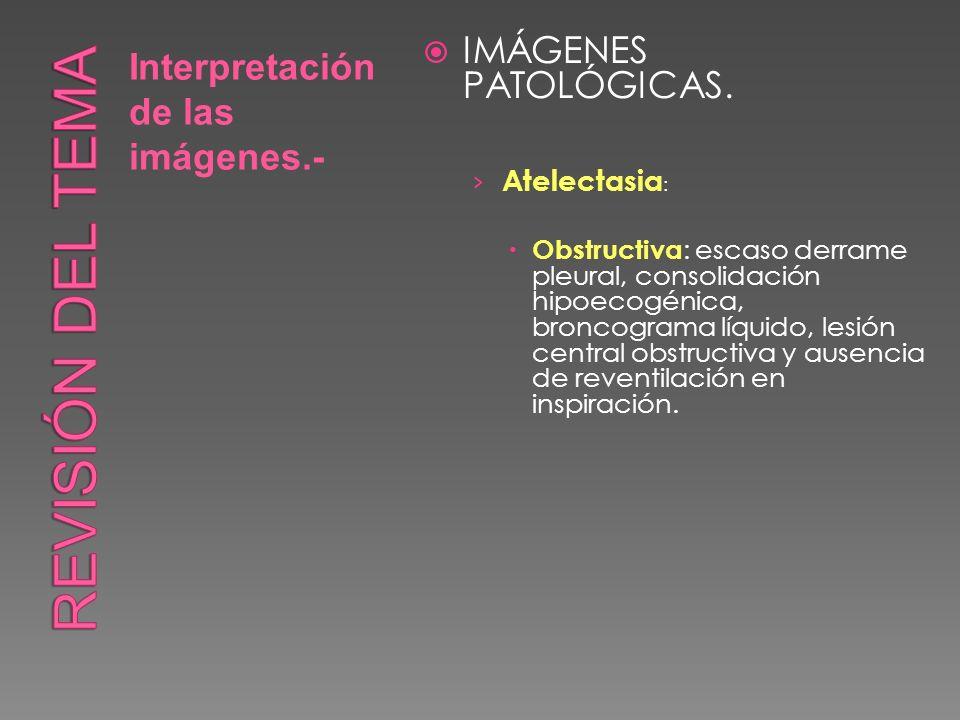 Interpretación de las imágenes.- IMÁGENES PATOLÓGICAS. Atelectasia : Obstructiva : escaso derrame pleural, consolidación hipoecogénica, broncograma lí
