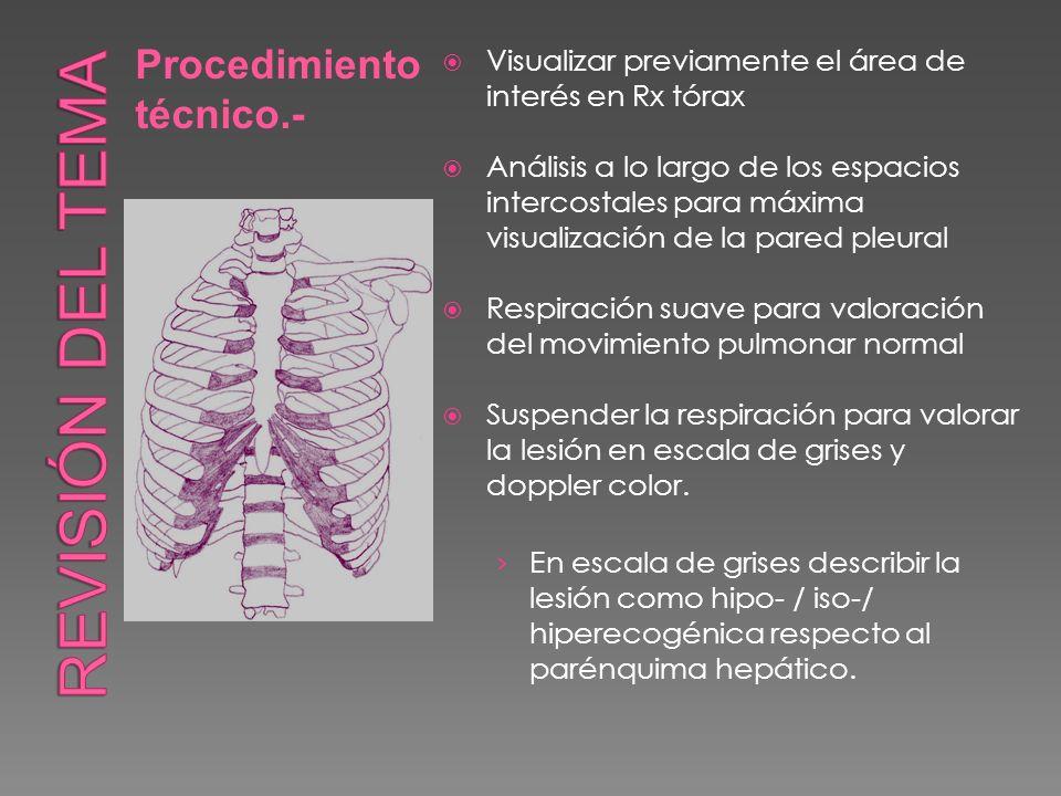 Visualizar previamente el área de interés en Rx tórax Análisis a lo largo de los espacios intercostales para máxima visualización de la pared pleural