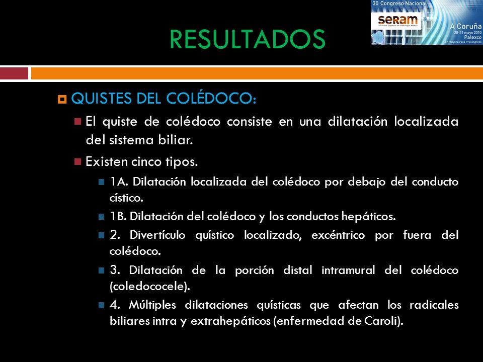 QUISTES DEL COLÉDOCO: El quiste de colédoco consiste en una dilatación localizada del sistema biliar. Existen cinco tipos. 1A. Dilatación localizada d