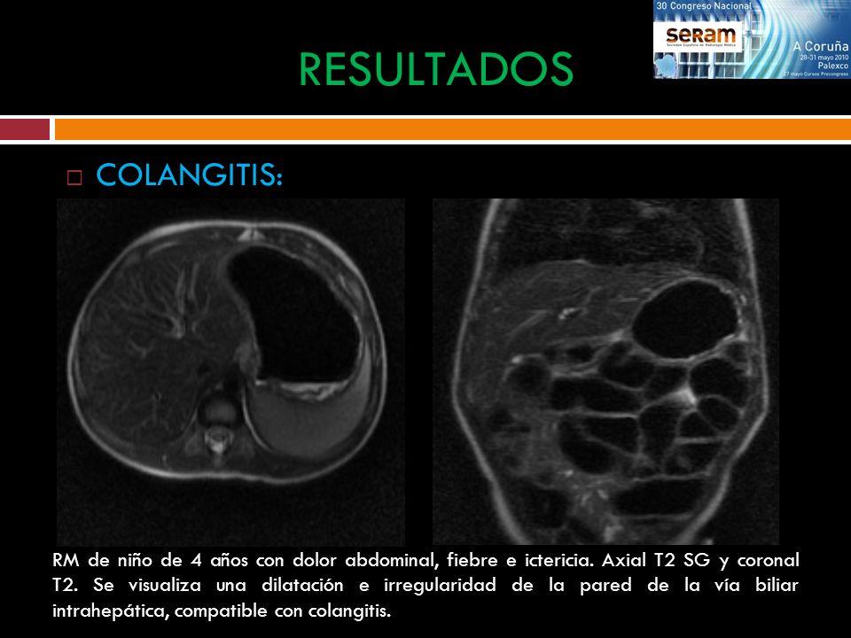 COLANGITIS: RESULTADOS RM de niño de 4 años con dolor abdominal, fiebre e ictericia. Axial T2 SG y coronal T2. Se visualiza una dilatación e irregular