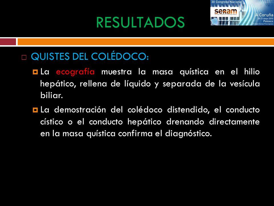 QUISTES DEL COLÉDOCO: La ecografía muestra la masa quística en el hilio hepático, rellena de líquido y separada de la vesícula biliar. La demostración