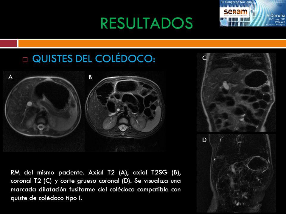 QUISTES DEL COLÉDOCO: RESULTADOS RM del mismo paciente. Axial T2 (A), axial T2SG (B), coronal T2 (C) y corte grueso coronal (D). Se visualiza una marc