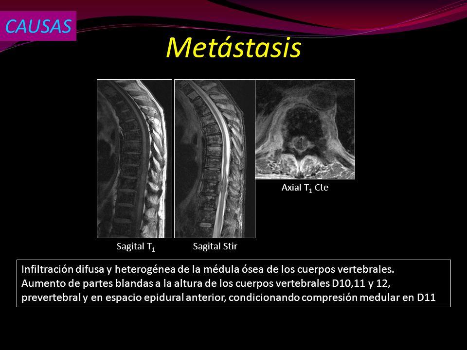 Sagital T 1 Sagital Stir Axial T 1 Cte Infiltración difusa y heterogénea de la médula ósea de los cuerpos vertebrales. Aumento de partes blandas a la