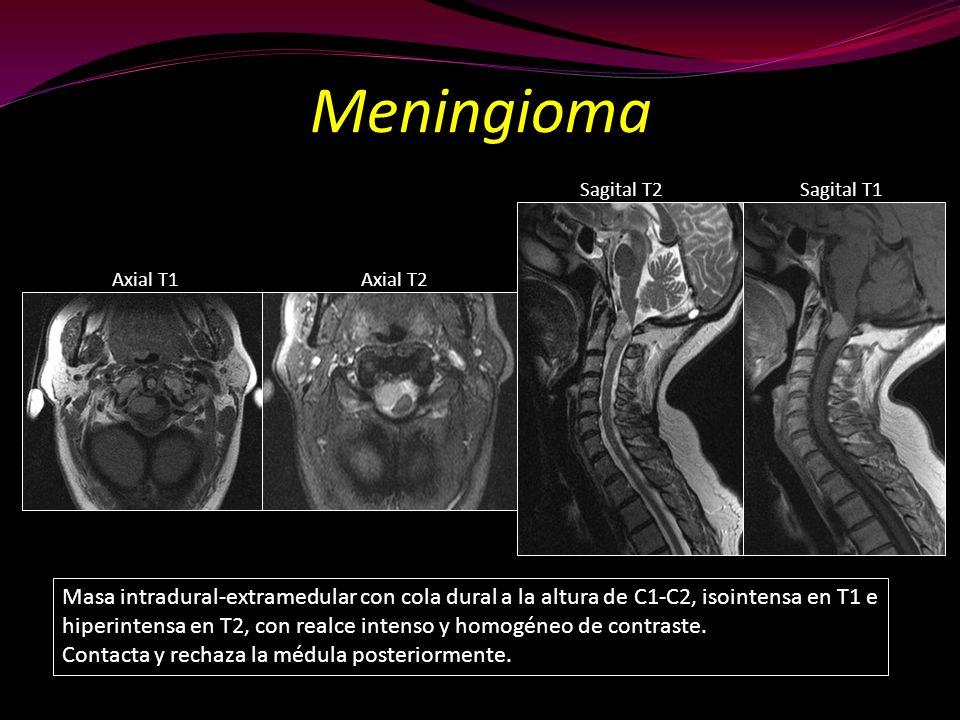 Meningioma Masa intradural-extramedular con cola dural a la altura de C1-C2, isointensa en T1 e hiperintensa en T2, con realce intenso y homogéneo de