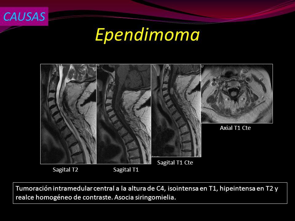 Ependimoma Sagital T2Sagital T1 Sagital T1 Cte Tumoración intramedular central a la altura de C4, isointensa en T1, hipeintensa en T2 y realce homogén