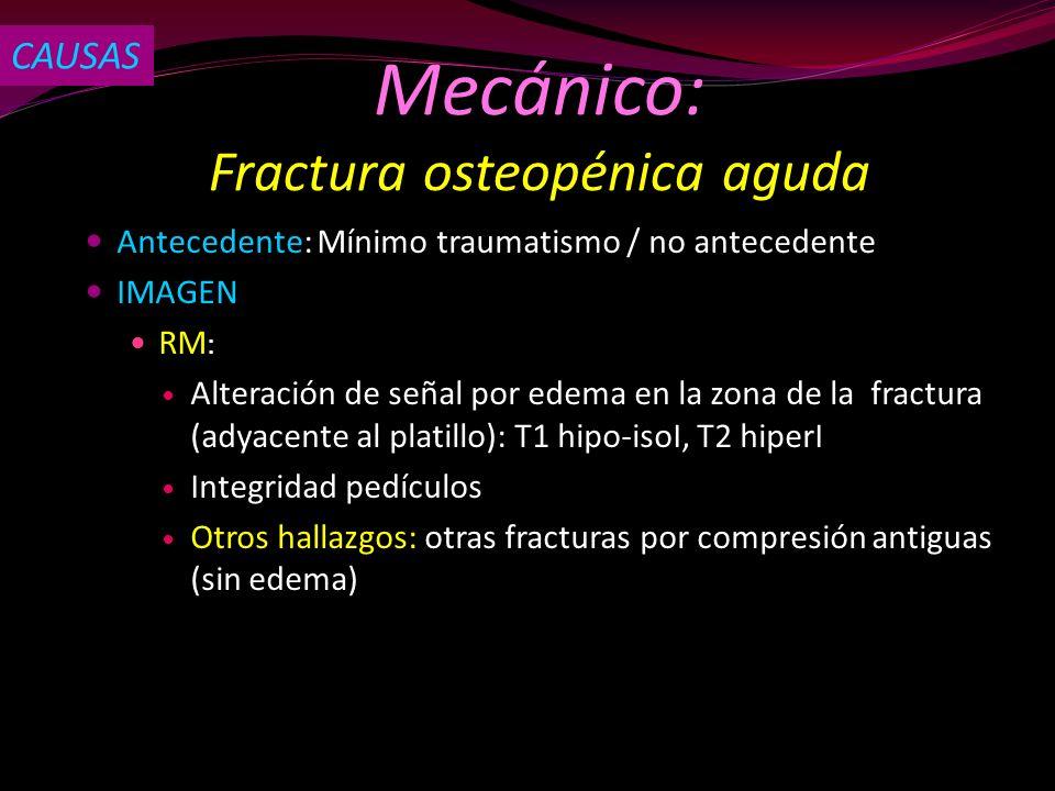 Antecedente: Mínimo traumatismo / no antecedente IMAGEN RM : Alteración de señal por edema en la zona de la fractura (adyacente al platillo): T1 hipo-