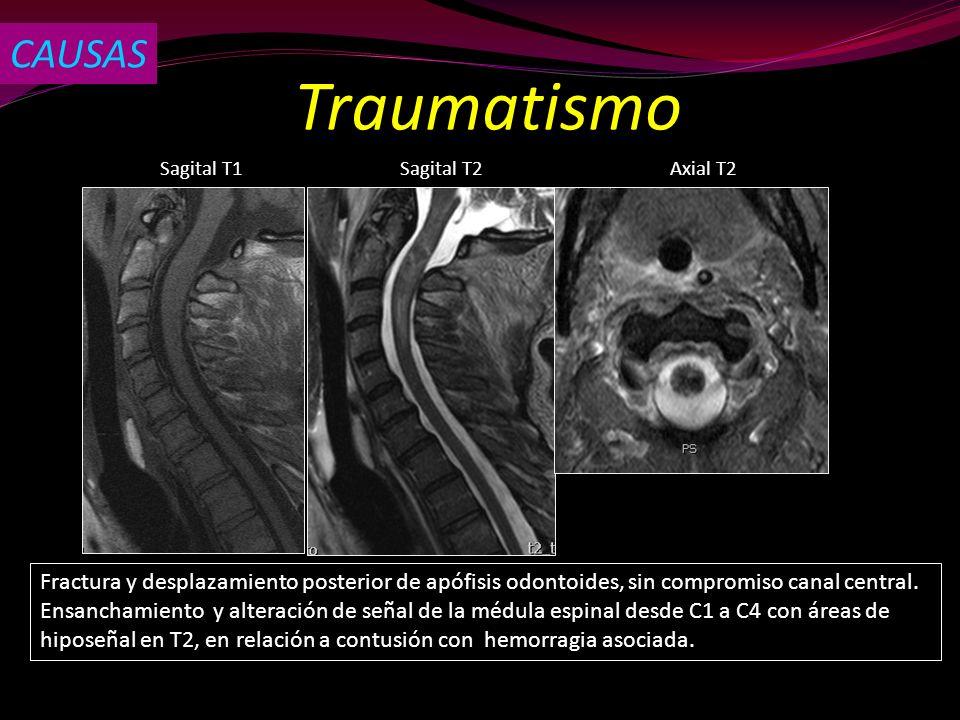 Traumatismo CAUSAS Sagital T2Sagital T1Axial T2 Fractura y desplazamiento posterior de apófisis odontoides, sin compromiso canal central. Ensanchamien