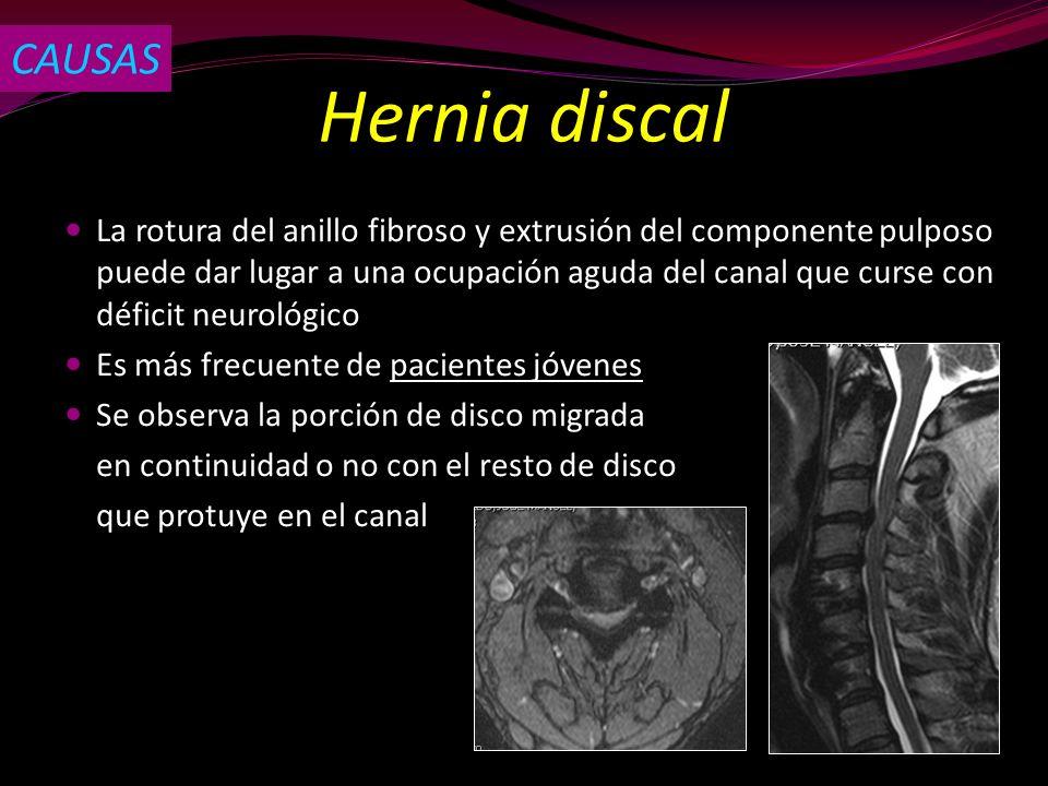 Hernia discal La rotura del anillo fibroso y extrusión del componente pulposo puede dar lugar a una ocupación aguda del canal que curse con déficit ne