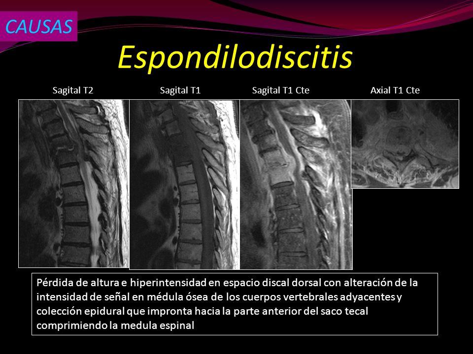 Espondilodiscitis Sagital T2Sagital T1Axial T1 CteSagital T1 Cte Pérdida de altura e hiperintensidad en espacio discal dorsal con alteración de la int