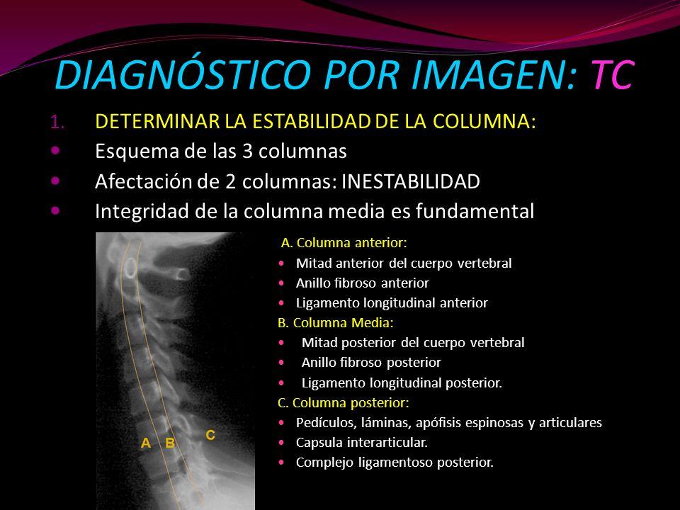 1. DETERMINAR LA ESTABILIDAD DE LA COLUMNA: Esquema de las 3 columnas Afectación de 2 columnas: INESTABILIDAD Integridad de la columna media es fundam