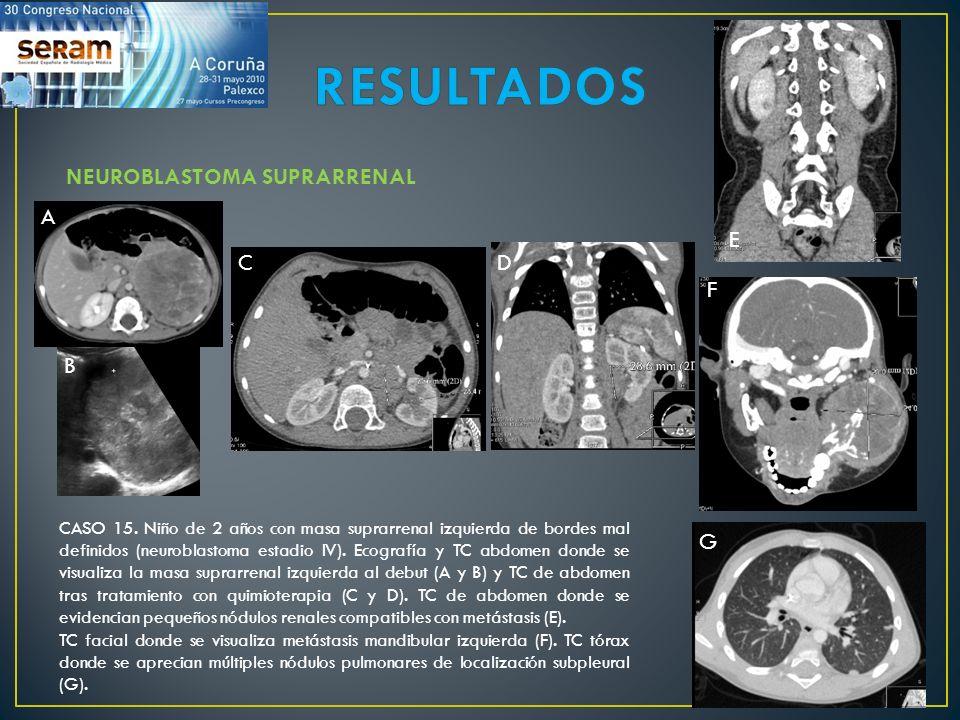 CASO 15. Niño de 2 años con masa suprarrenal izquierda de bordes mal definidos (neuroblastoma estadio IV). Ecografía y TC abdomen donde se visualiza l
