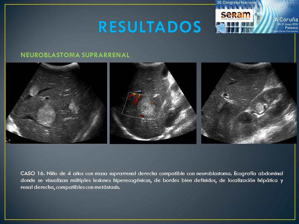 NEUROBLASTOMA SUPRARRENAL CASO 16. Niño de 4 años con masa suprarrenal derecha compatible con neuroblastoma. Ecografía abdominal donde se visualizan m