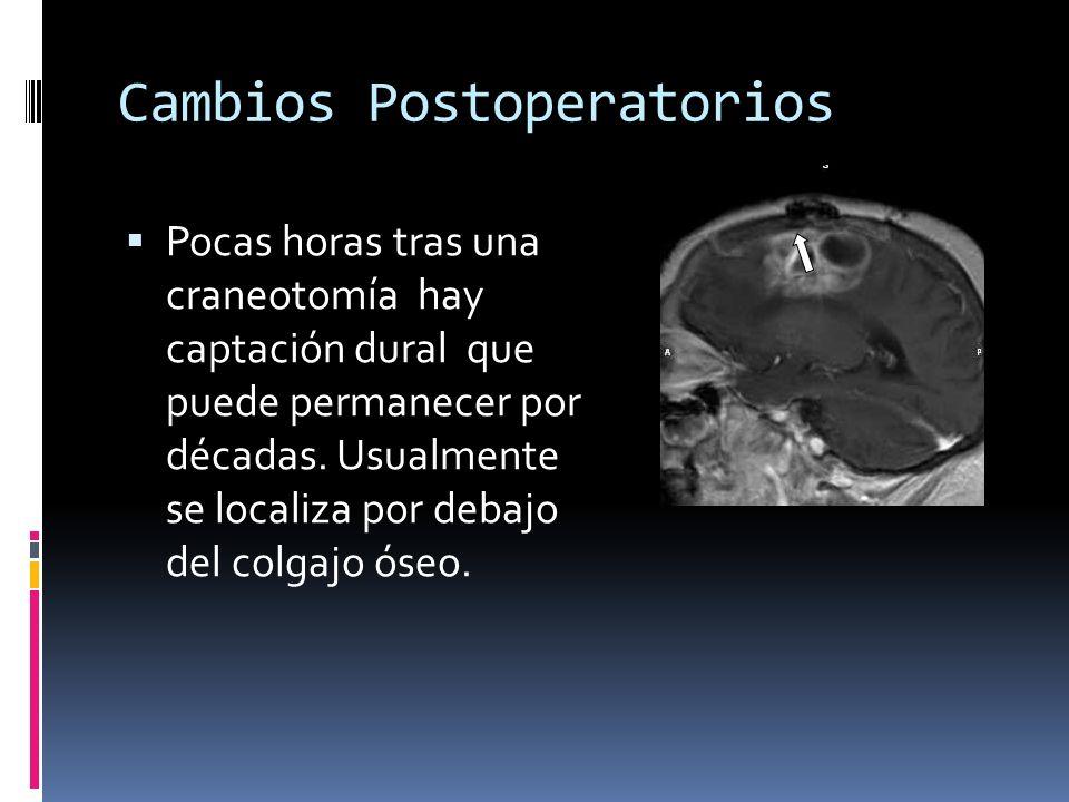 Cambios Postoperatorios Pocas horas tras una craneotomía hay captación dural que puede permanecer por décadas. Usualmente se localiza por debajo del c