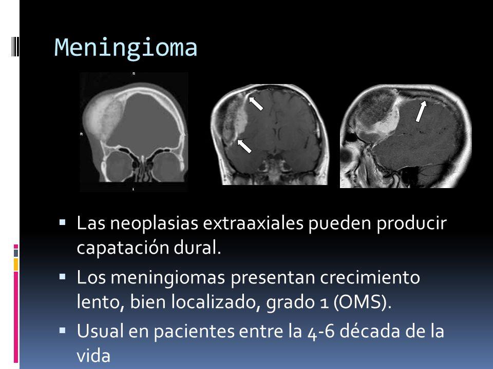Meningioma La cola dural representa captación de duramadre engrosada El engrosamiento representa vasocongestión y edema intersticial en lugar de infiltración tumoral Se presenta en otras neoplasias: sarcomas, metastasis durales y extensión extracerebral de gliomas