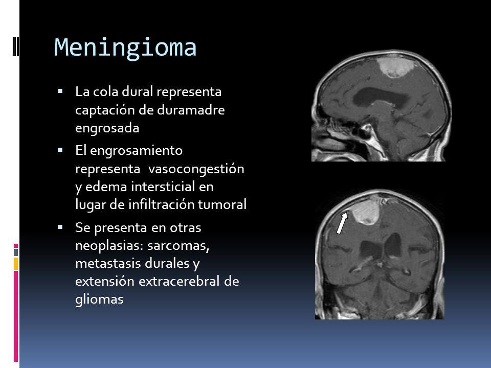 Meningioma La cola dural representa captación de duramadre engrosada El engrosamiento representa vasocongestión y edema intersticial en lugar de infil
