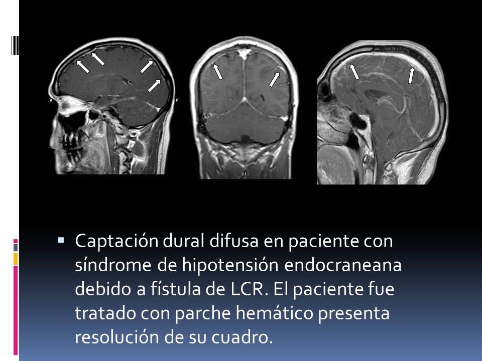 Captación dural difusa en paciente con síndrome de hipotensión endocraneana debido a fístula de LCR. El paciente fue tratado con parche hemático prese