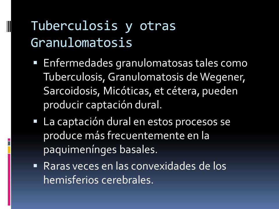 Tuberculosis y otras Granulomatosis Enfermedades granulomatosas tales como Tuberculosis, Granulomatosis de Wegener, Sarcoidosis, Micóticas, et cétera,