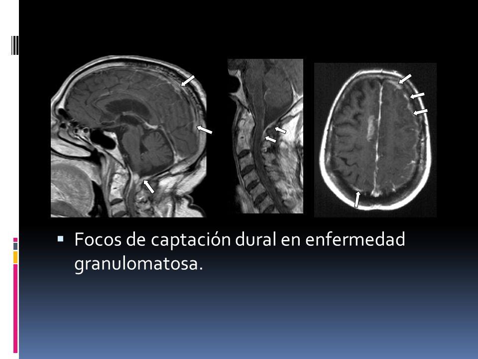 Focos de captación dural en enfermedad granulomatosa.