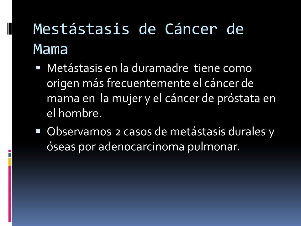 Metástasis cerebrales por cáncer de mama con metástasis durales.