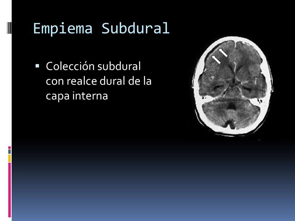 Empiema Subdural Colección subdural con realce dural de la capa interna