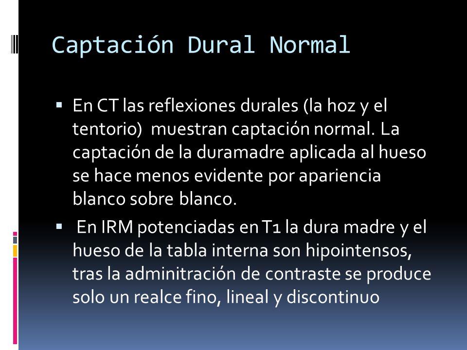 Captación Dural Normal En CT las reflexiones durales (la hoz y el tentorio) muestran captación normal. La captación de la duramadre aplicada al hueso